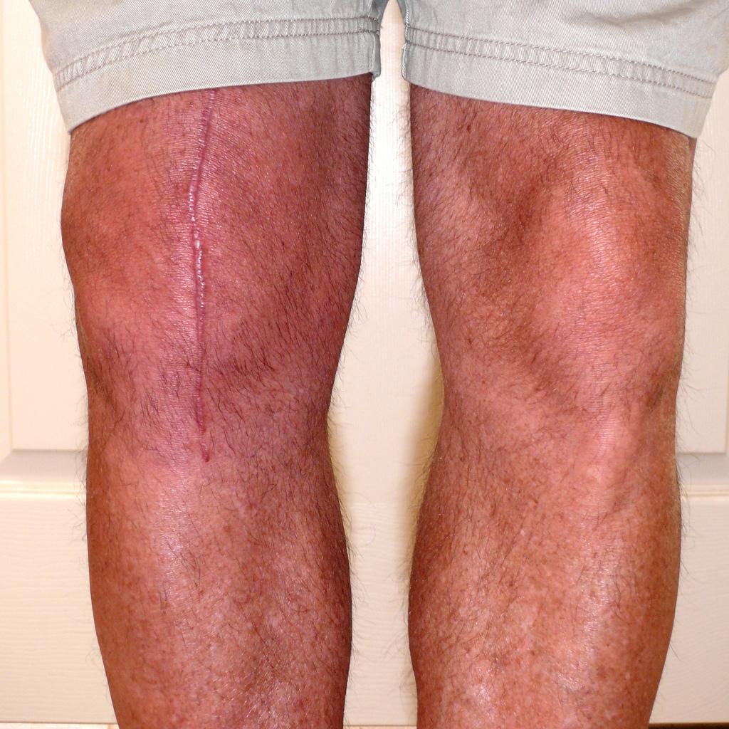 knee-scar